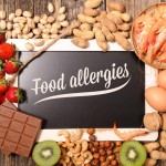 food-allergies-written-on-a-board-surrounded-by-food